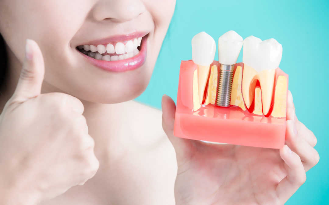 4 Essential Tips to Taking Care of Your Dental Implants