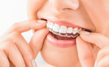 Why Is Invisalign The Right Choice for You