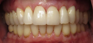 Close up of a mouth after Porcelain Veneers