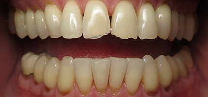 Close up of a mouth before Porcelain Veneers