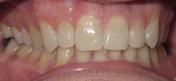 Close up of a mouth after Teeth Whitening