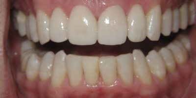 Close up of a mouth after receiving a smile makeover