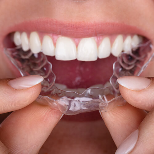 Close up of a mouth putting on Invisalign clear aligners