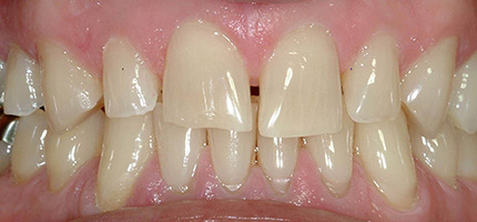 Close up of a mouth before smile rejuvenation