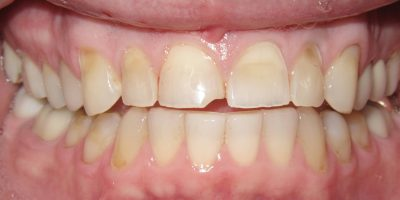 Close up of a mouth before receiving a smile makeover