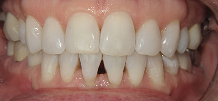 Close up of a mouth before Composite Bonding