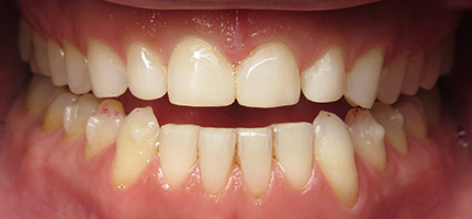 Close up of a mouth after Bioclear