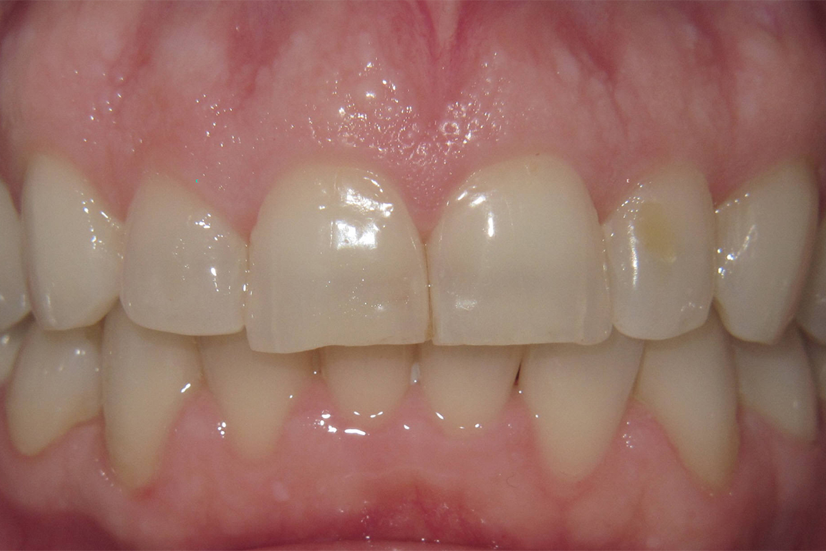 Close up of a mouth before Teeth Whitening