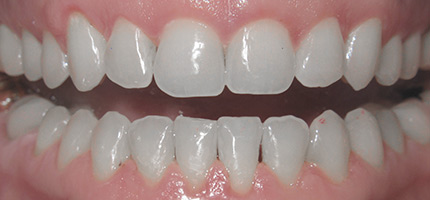 Close up of a mouth after Invisalign straightening