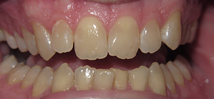 Close up of a mouth before bleach